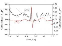 計測した心臓磁界波形