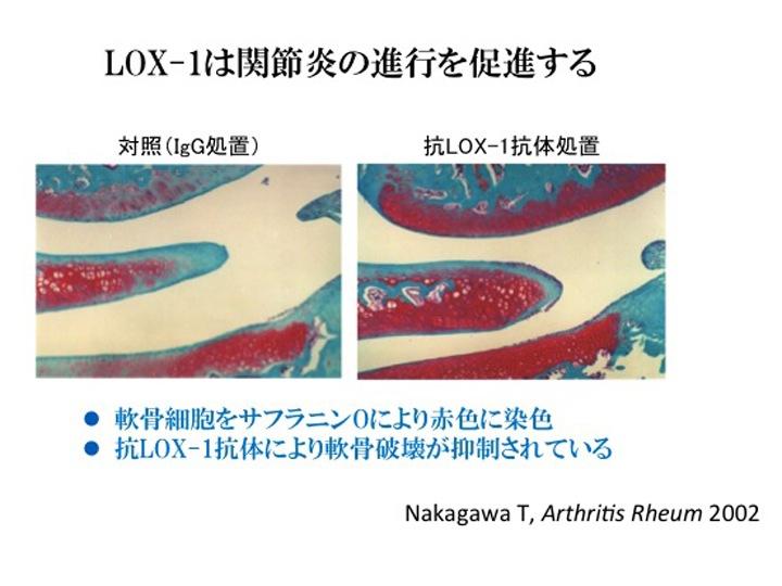 関節肥大は誘導3時間後から認められ、24時間後には関節径が最大となったが、抗LOX,1抗体処置により、誘導24時間後の関節肥大は最大34%抑制され、関節腔への白血球の