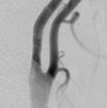 頚動脈ステント術後