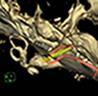 蝸牛、三半規管、神経