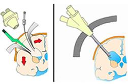 ロボットを用いた低侵襲手術の概念図