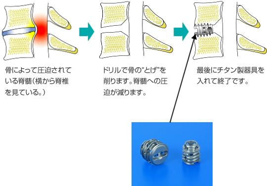 チタン製器具を用いた、脊椎脊髄手術に対する前方固定術