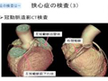 【狭心症】信大病院TV待合室~VOL.9 狭心症の予防と最新の治療
