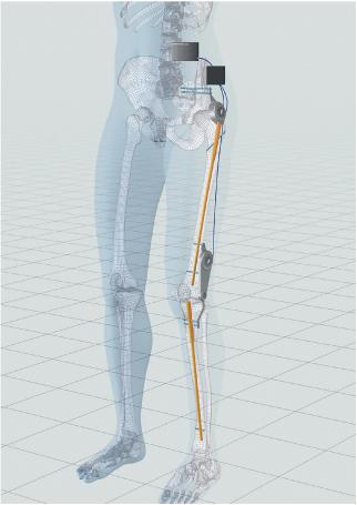 Walking Assist Cyborg( Image)