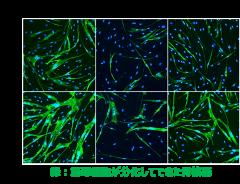 図:myoDNによる糖尿病筋芽細胞の分化の改善