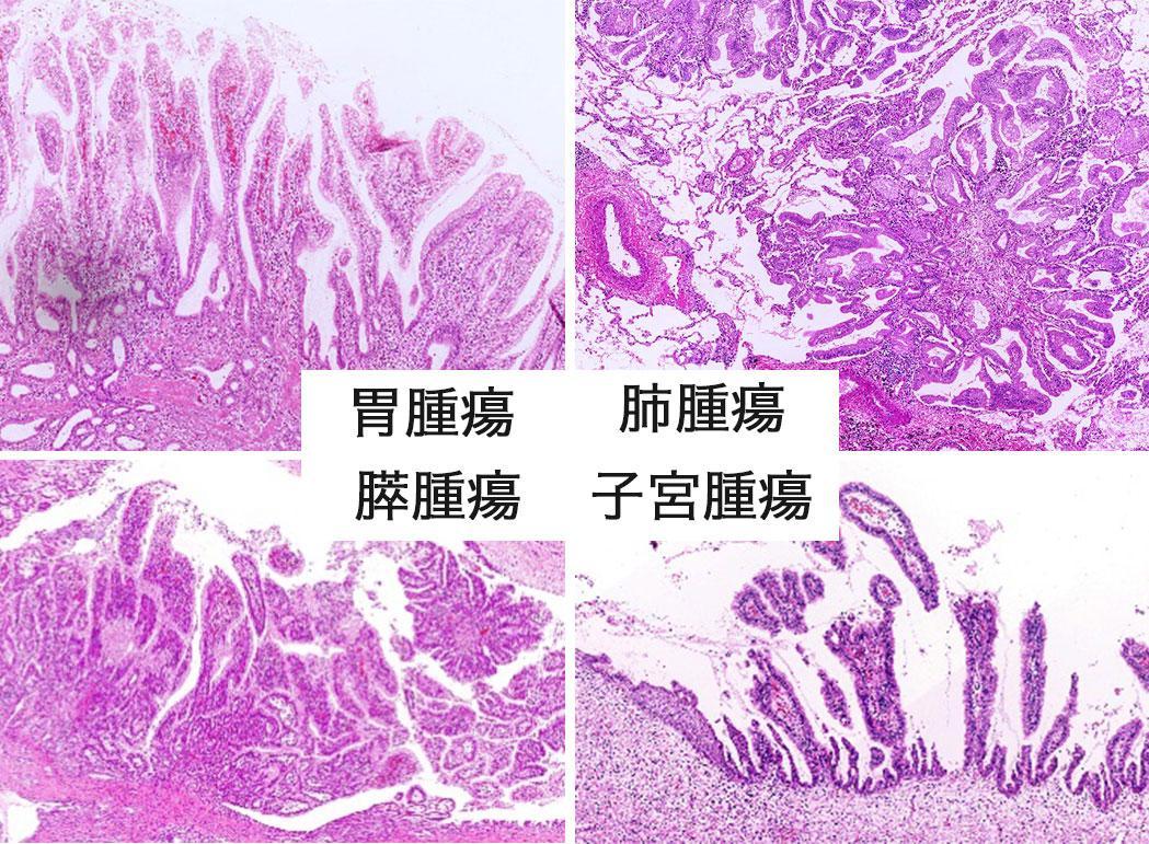腫瘍.JPG