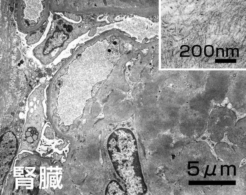 アミロイド線維ー電子顕微鏡写真.JPG